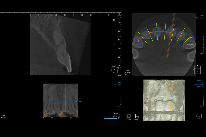 diagnosisofrootfracture