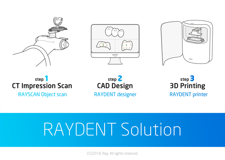 RAYDENT_Solution