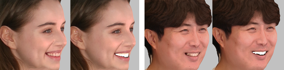 Apply patient smile design virtually for effective consultation.