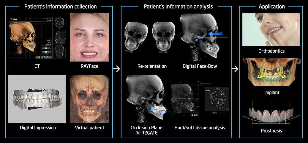 DOD, surgical guide and prosthetic fabrication with CT